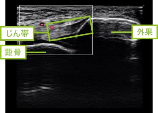 【大人の足関節の捻挫】じん帯はレントゲンでは映らない